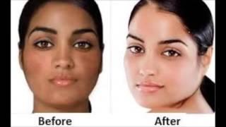 Best Skin Whitening Soap For Black Skin - Black Skin Lightening Cream Uk