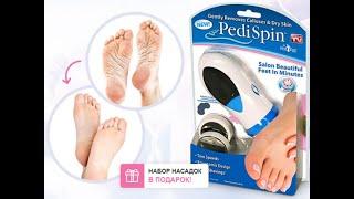 Что помогает от натоптышей на ногах