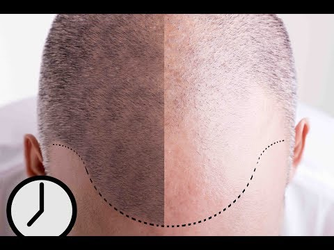 SMP Hair Pigmentation - An Overview of this New Hair Loss Treatment for Men