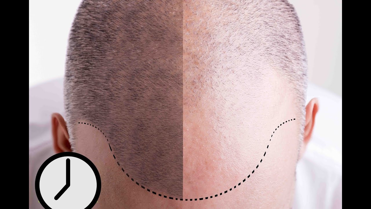 Smp Hair Pigmentation An Overview Of This New Hair Loss