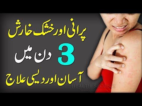 Kharish Ka Fori ilaj || Itching Desi Treatment || How To Stop Skin Itching || In Urdu/Hindi