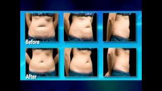 Riverchase Coolsculpting TV Commercial Thumbnail