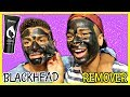 BLACKHEAD REMOVER MASK! (Acne Treatment) Blair Thompson