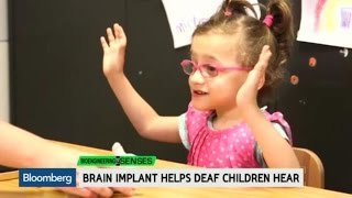 Brain Implant Helps Deaf Children Hear
