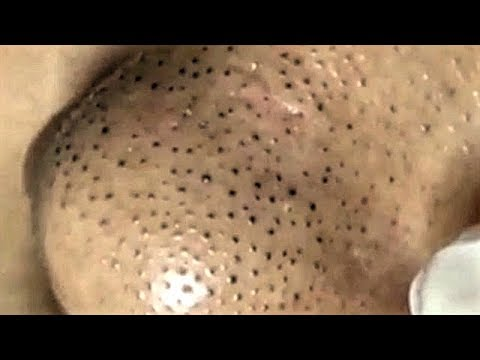 Satisfying Acne, Blackheads Removal Video Facial Skin Care With Relaxing Sleep Music (Part 183)