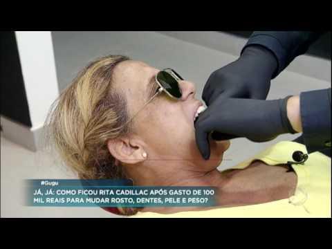 Rita Cadillac passa por transformação radical de R$ 100 mil