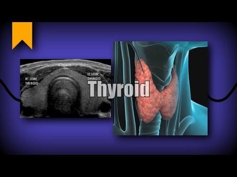 Thyroid Ultrasound