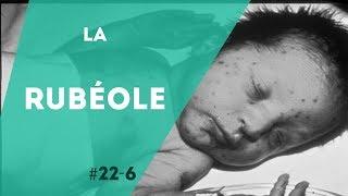 PNN 22.6 - La Rubéole