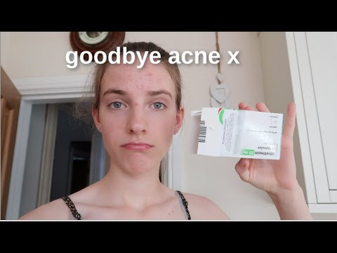 My First Week On Accutane... #weeklyvlog
