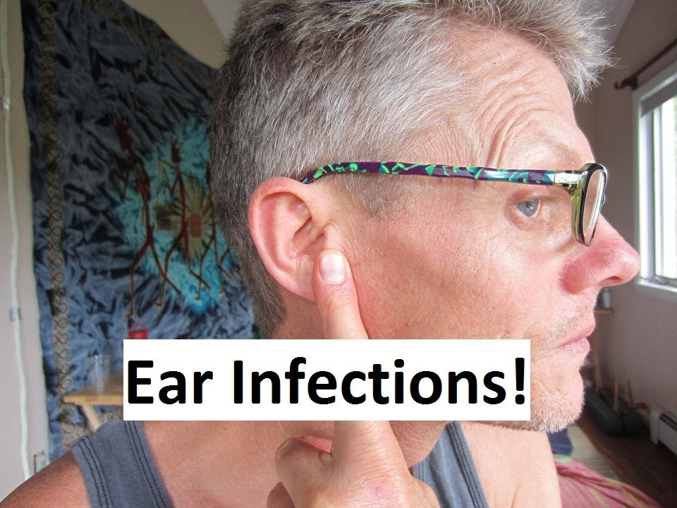 Download Is Dairy Healthy?  Is Dairy Bad for You?  Ear Infections & Acne!