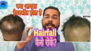 How to Stop Hair Fall | Kya Hair Transplant Ke Baad HairFall Ruk Jaata Hai