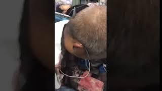 Elderly Man Impaled during work accident