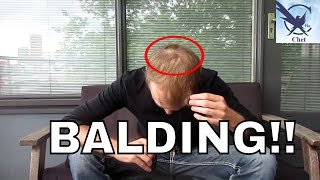 How to deal with balding!