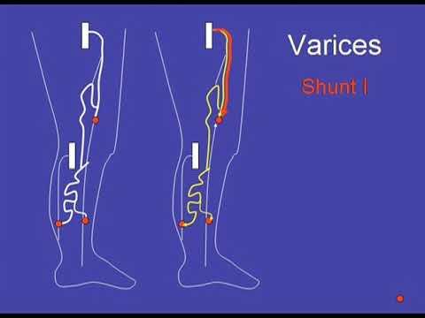 operațiunea de eliminare varico video exerciții de picior varicoase