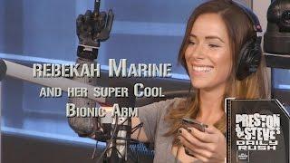 Rebekah Marine And Her Bionic Arm