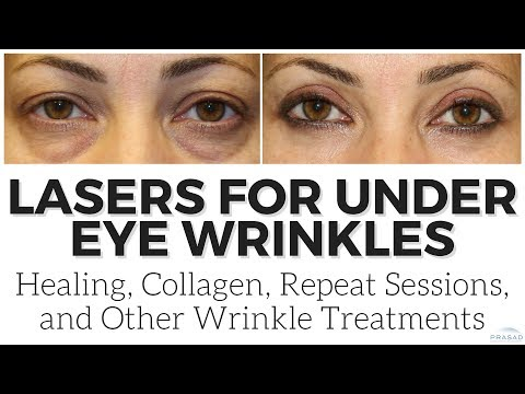 How Collagen Induction Continues after a Laser Procedure, and Other Wrinkle Treatments
