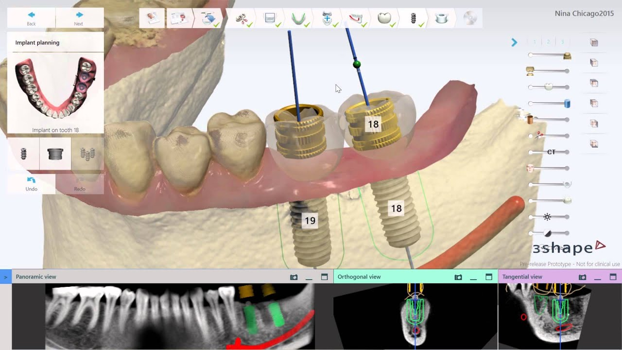 3Shape adds DENTSPLY Implants to implant software | Dental