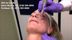 Eclipse Micropen Elite Demonstration   Brittany White FNP MSN   Skin by Lovely