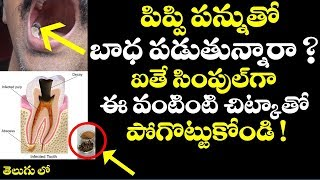 పిప్పి పన్నుతో బాధ పడుతున్నారా ? ఐతే ఈ చిట్కాతో పోగొట్టుకోండి | Tooth Decay natural remedies telugu