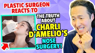 Plastic Surgeon Reacts to CHARLI D'AMELIO's Nose Surgery! - Dr. Anthony Youn