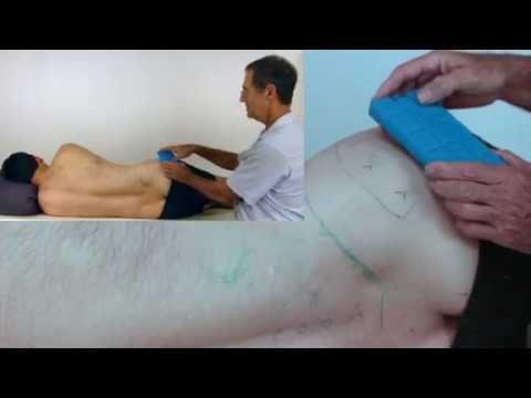 sciatica-and-sciatic-nerve-pain---gluteus-minimus-trigger-points