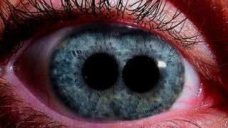 I have Double Eyes!  Plus RESTMORE Twins - Pupula Duplex! thumbnail