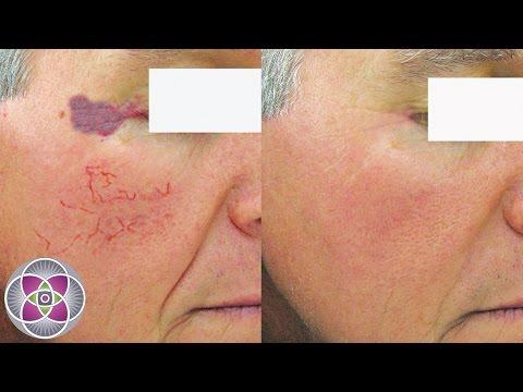 Laser Vein Removal, Broken Capillaries and Spider Veins