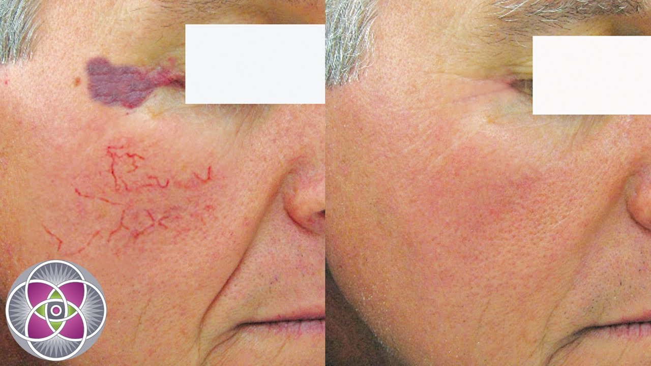 broken capillaries facial
