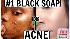hqdefault - Madina Black Soap Acne