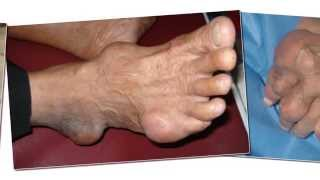 Tophi as an initial manifestation of gout