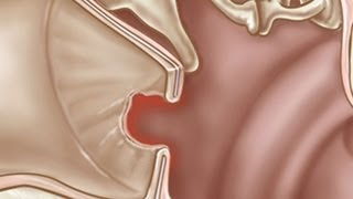 How to Treat a Perforated Ear Drum | Ear Problems