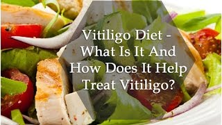 Food and Diet Tips for Vitiligo Patients by Dr Rajesh Shah, MD Homeopathy