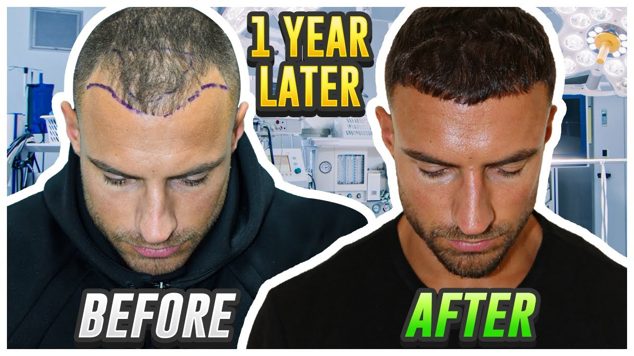 My Hair Transplant Results After 1 Year