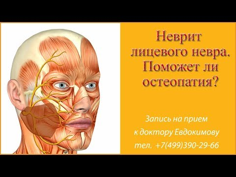 Неврит лицевого нерва.  Поражение нерва при переохлаждении
