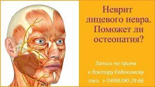 видео Неврит