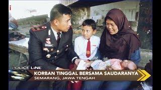 Diracun oleh Suami saat Hamil Tua, Pujiati Jalani Operasi Sesar - Police Line 12/11