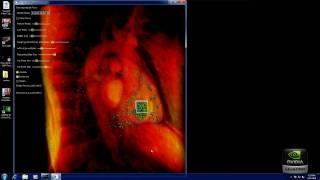 Computational Visualization of 4D Cardiac Flow