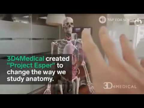 3D 4 medical by insider - YouTube
