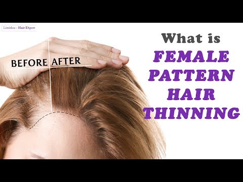 Everything Women should KNOW about Female Pattern Hair Thinning-Hair Expert Dino