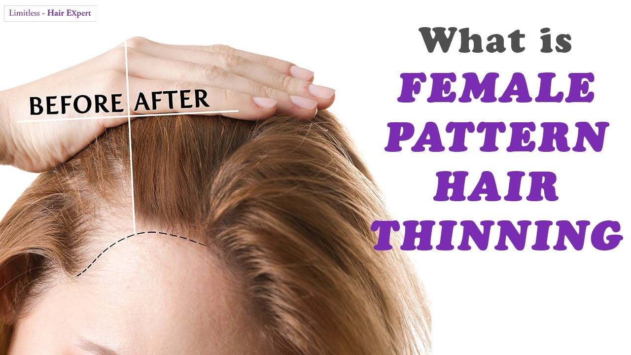 Female Hair Loss Before And After Picture