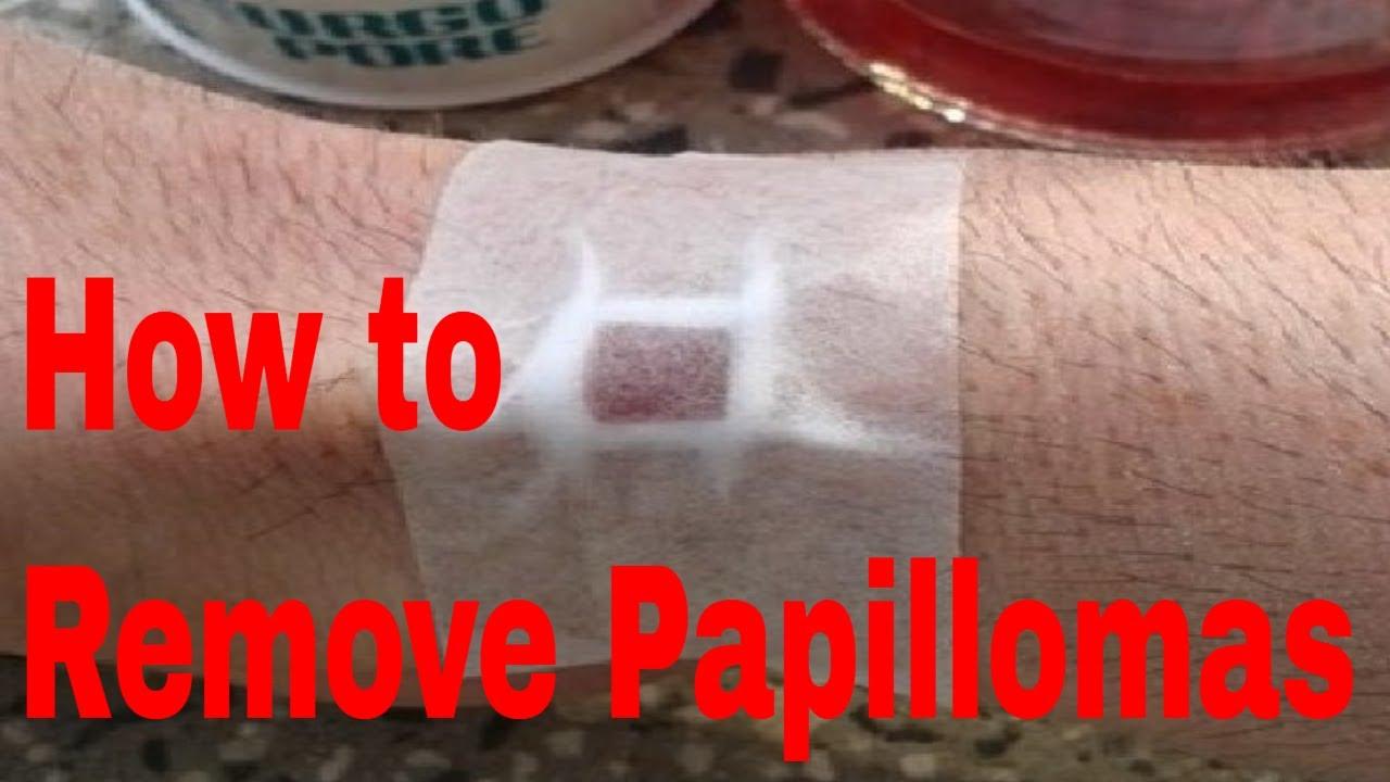 Removal of papillomas at home folk remedies 90