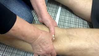 Padeiro cisto tratamento de de rompido joelho no