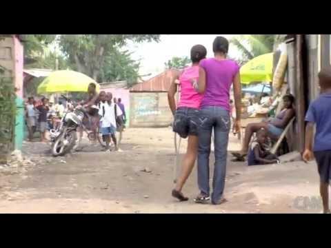 Amputee Woman LAK in Haiti