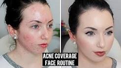 hqdefault - Fair Skin And Acne