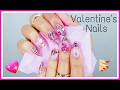VALENTINE'S DAY NAILS | Glittered Acrylic Nails Tutorial