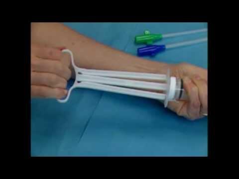 МВА - Мануальная вакуумная аспирация Руководство по обучению для акушеров-гинекологов