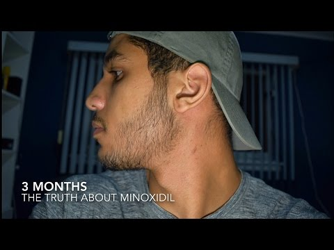 Minoxidil Side Effects: Results & The Truth of Minoxidil Beard
