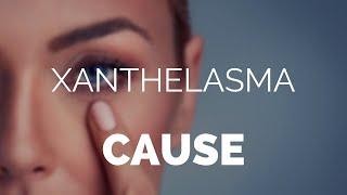 Xanthelasma cause, what causes Xanthelasma and xanthomas?