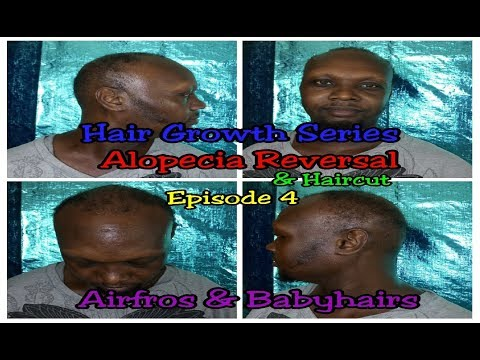 hair-growth-series-alopecia-reversal-&-haircut-ep-4-/-natural-hair