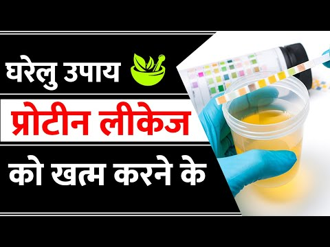 How To Stop Leakage Of Protein From Kidney Naturally -Nephrotic Syndrome (English)